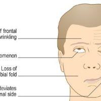 PARÁLISIS FACIAL. Caso clínico presentado por Miren Arocena (R1)